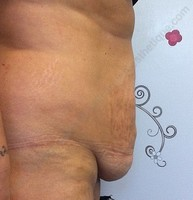 Abdominoplastie exces peau ventre