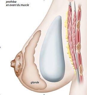 Augmentation mammaire : le désir assumé d'avoir une grosse poitrine