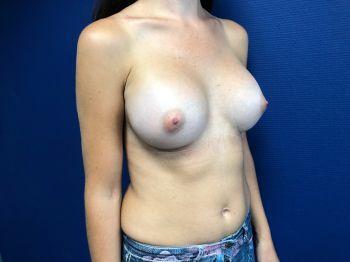 implants mammaires marseille
