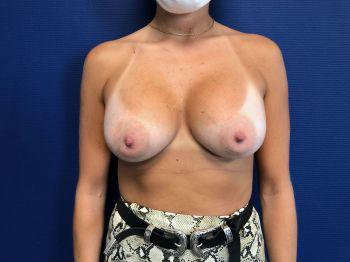 Prothèses mammaires et ptose naissante