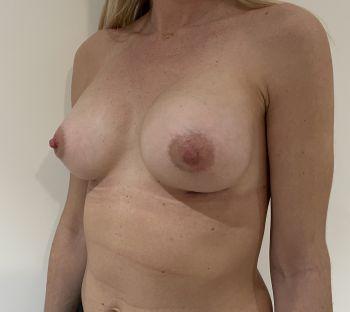 Augmentation mammaire par implants anatomiques MOTIVA TRUE FIXATION