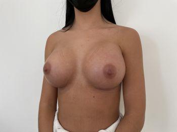 Augmentation mammaire marseille