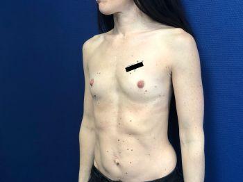 Augmentation mammaire à Marseille
