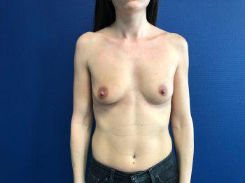 augmentation mammaire aix en provence