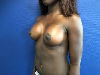 prothèses mammaires MOTIVA