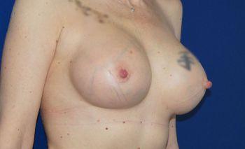 chirurgie-mammaire-marseille
