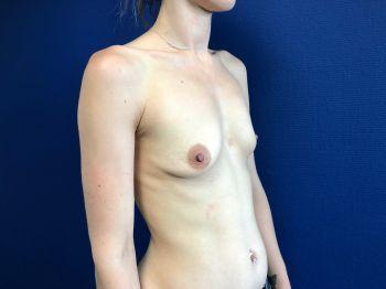 augmentation mammaire anatomique