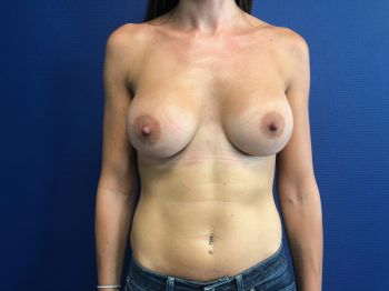 protheses mammaires aix en provence