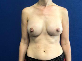 photo avant après protheses mammaires marseille