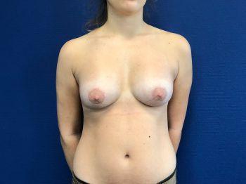seins tubéreux protheses