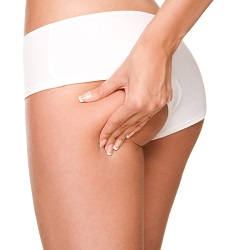 Les solutions pour perdre de la graisse : lipoaspiration, cryolipolyse, liposuccion douce