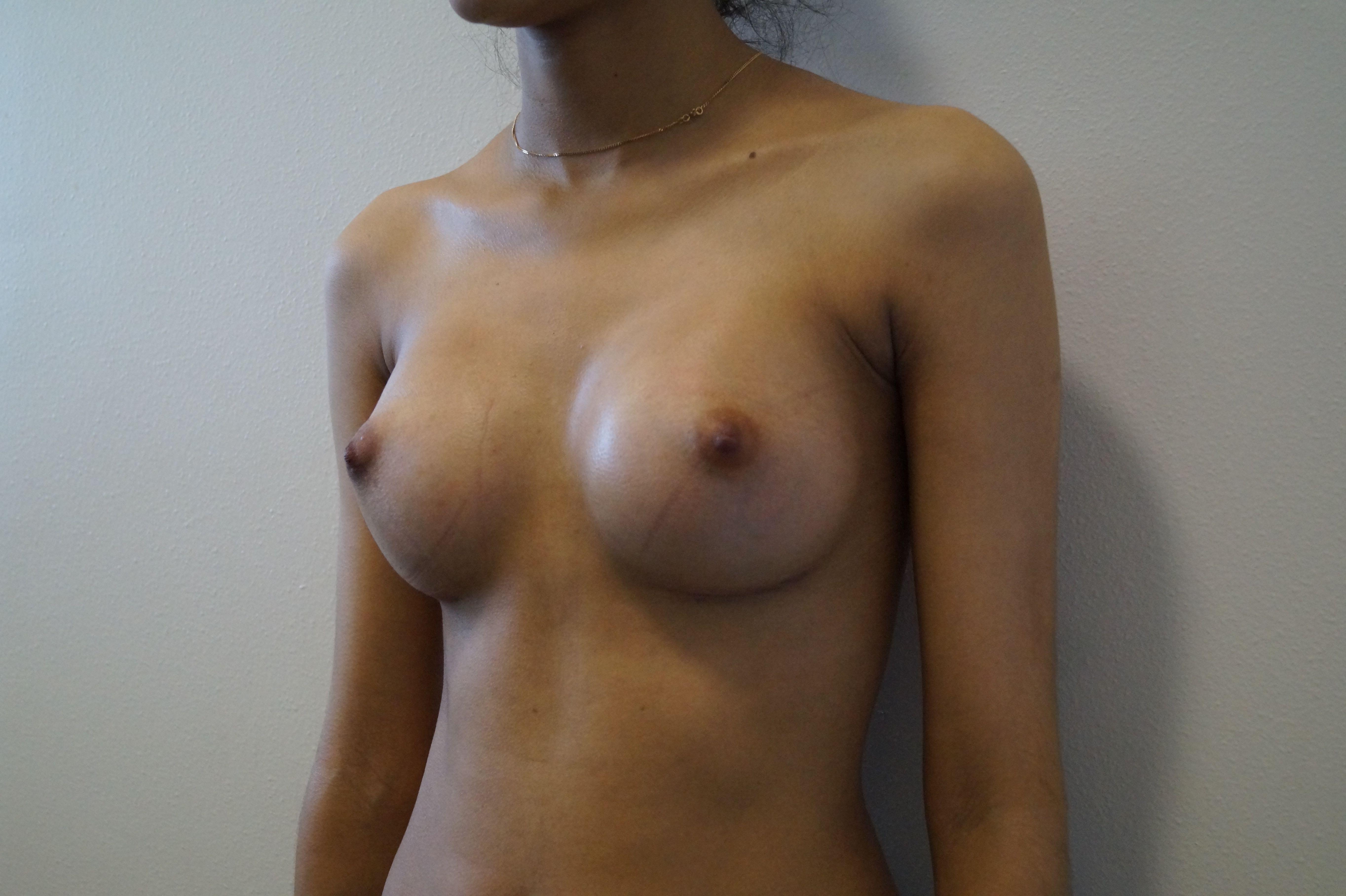 augmentation mammaire prise en charge marseille