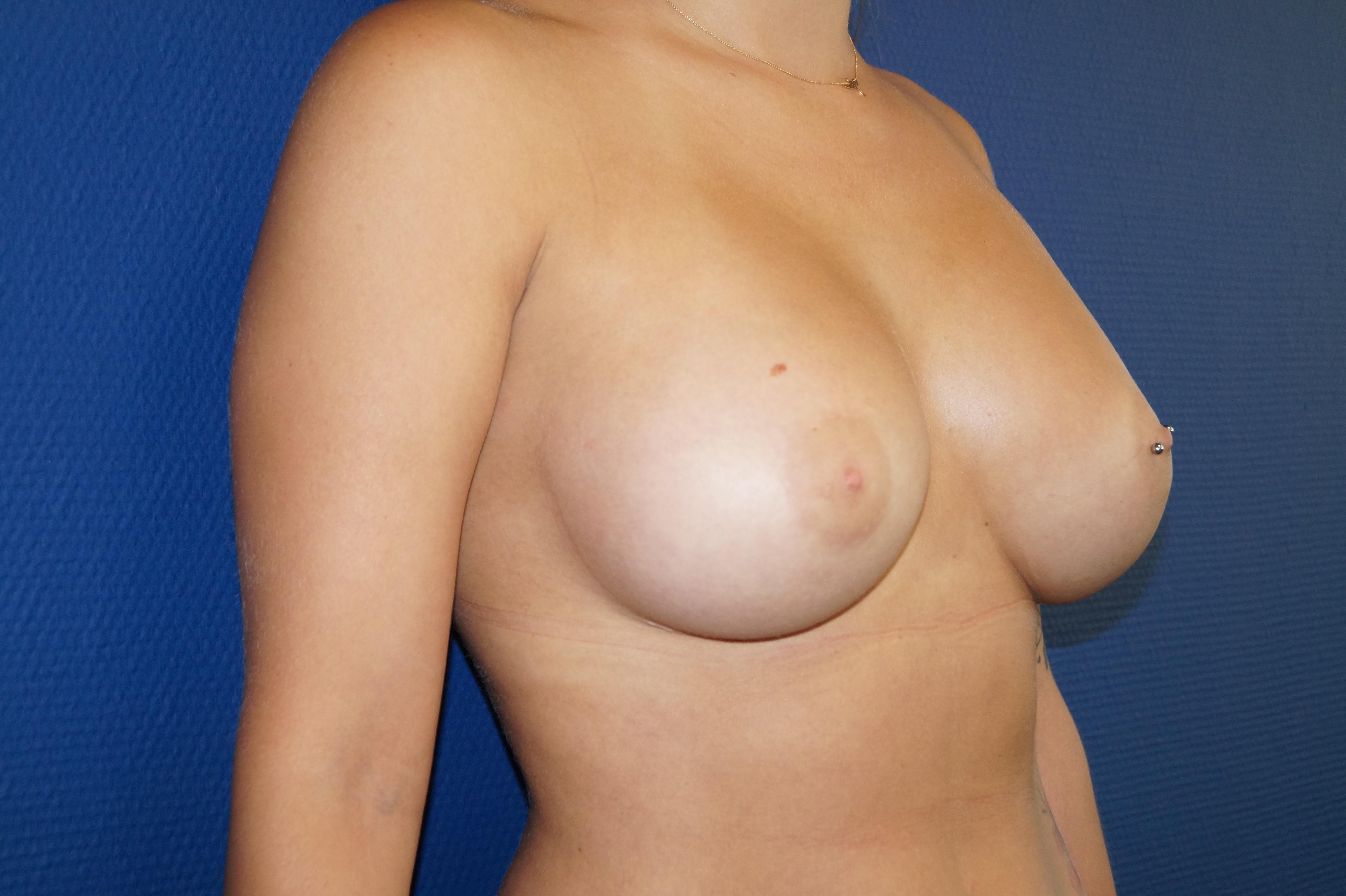 photo augmentation mammaire marseille