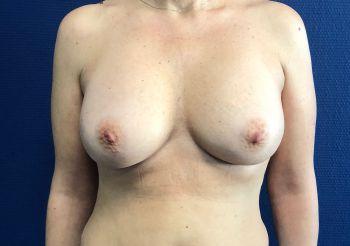 Augmentation mammaire chez une patiente de 50 ans
