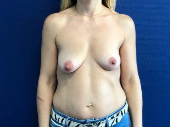 augmentation mammaire naturelle