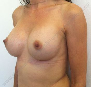 chirurgie mammaire prix