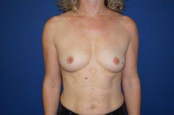 chirurgie poitrine marseille