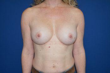 chirurgie seins marseille