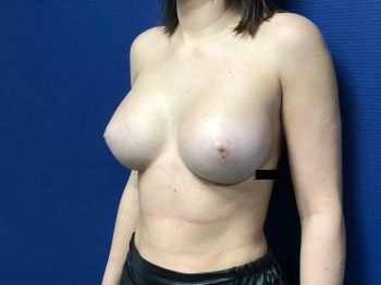 Augmentation mammaire par voie sous mammaire