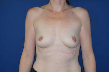 photo avant après protheses mammaires