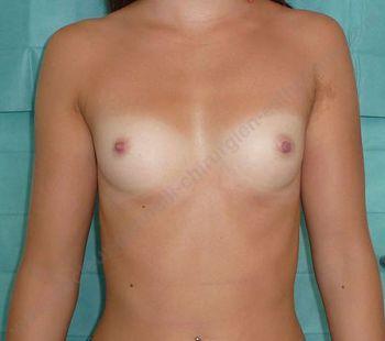 implantation mammaire
