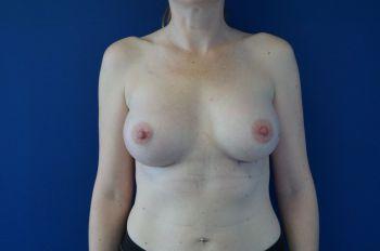 photos avant après protheses mammaires
