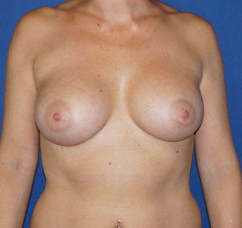 ptose mammaire avant après