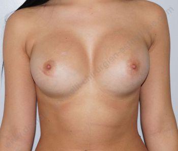 tarif augmentation mammaire