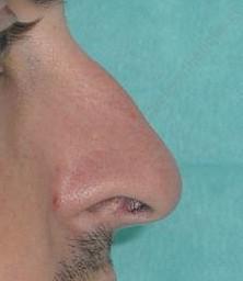 chirurgie esthtique nez