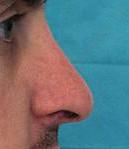 rhinoplastie
