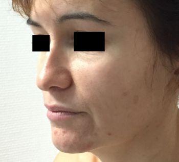 injection de graisse visage