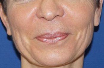 lipofilling visage marseille