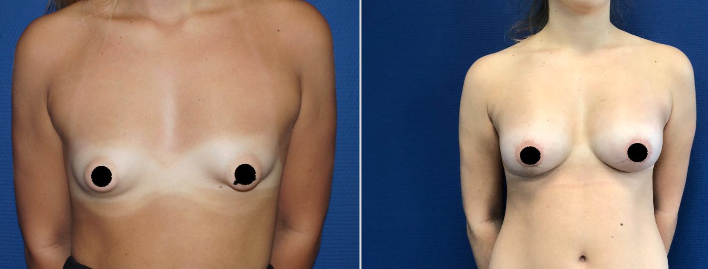 Les différentes opérations pour les seins tubéreux